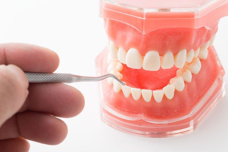 歯周病(歯槽膿漏)が原因の口臭について解説します