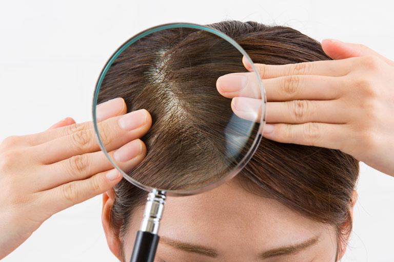 加齢臭の原因は頭皮の皮脂