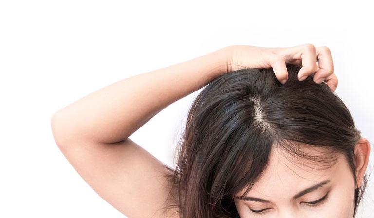 加齢臭のメイン発生源は頭皮