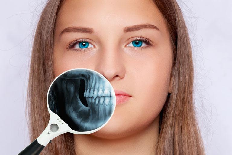 臭い 抜歯 後 抜歯後の臭いはいつまで続くものでしょうか?